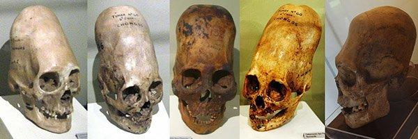 paracas-skull