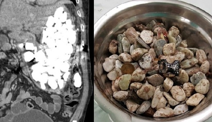 Stones stomach