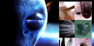 alien implants