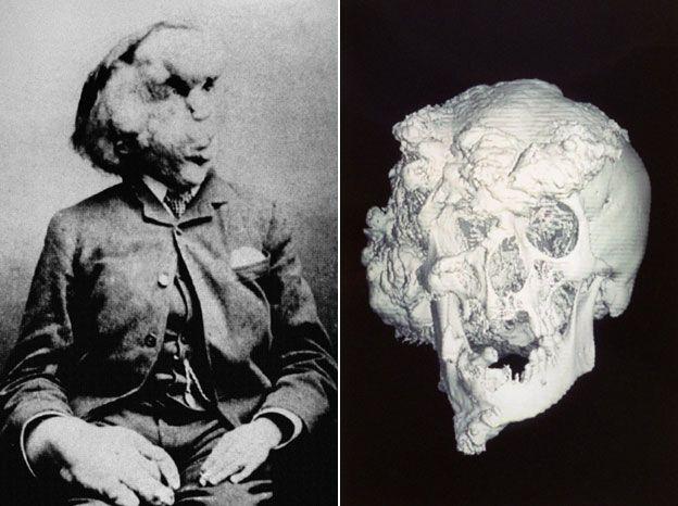 The skull of Joseph Merrick