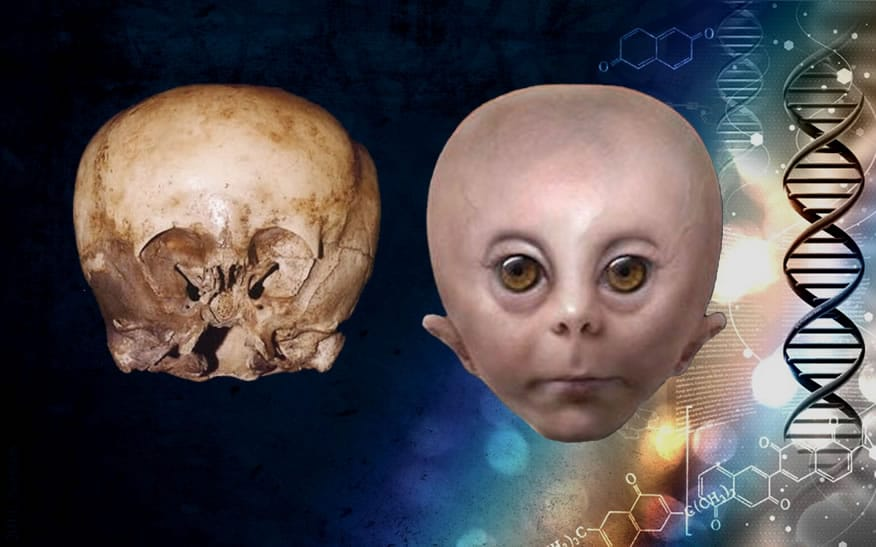 The Story Behind the StarChild Skull: Who Is Telling the Truth?